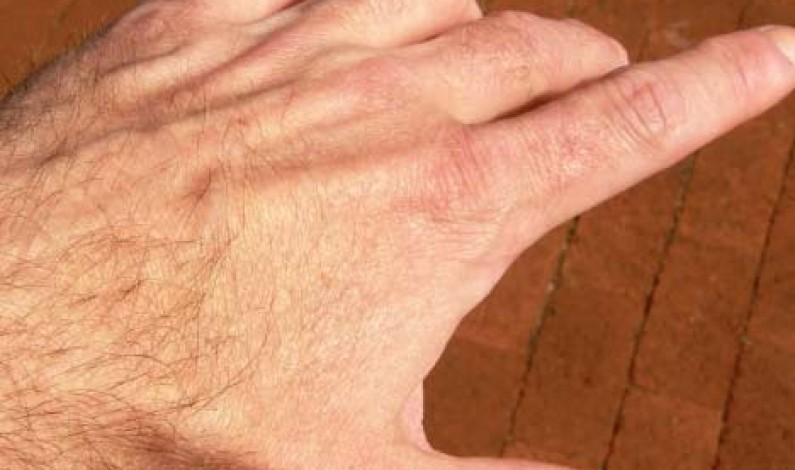 Hair On Hands In Palmistry